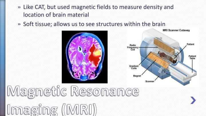 Like CAT, but used magnetic fields to measure density and location of brain material