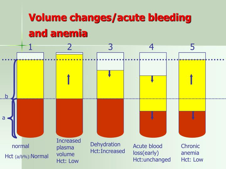 Volume changes/acute bleeding and anemia