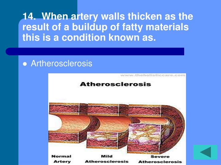 14.  When artery walls thicken as the result of a buildup of fatty materials this is a condition known as.
