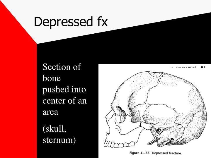 Depressed fx