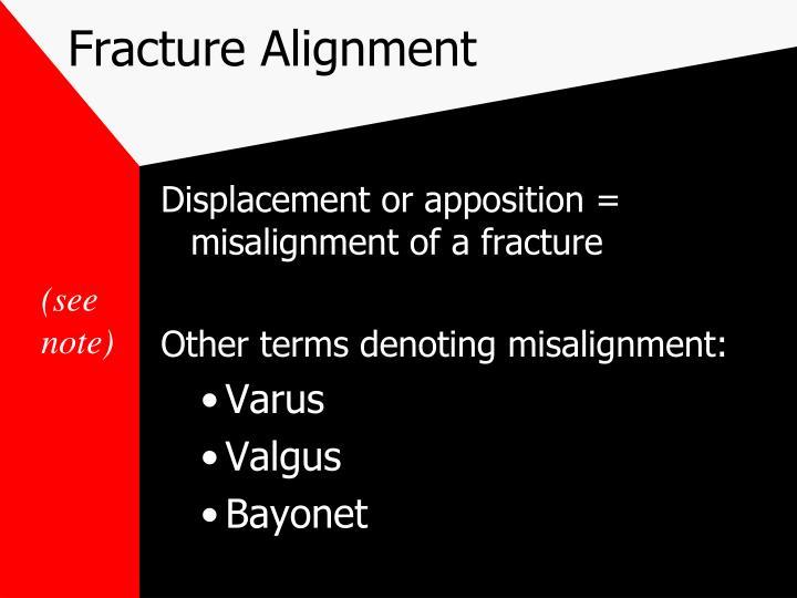 Fracture Alignment