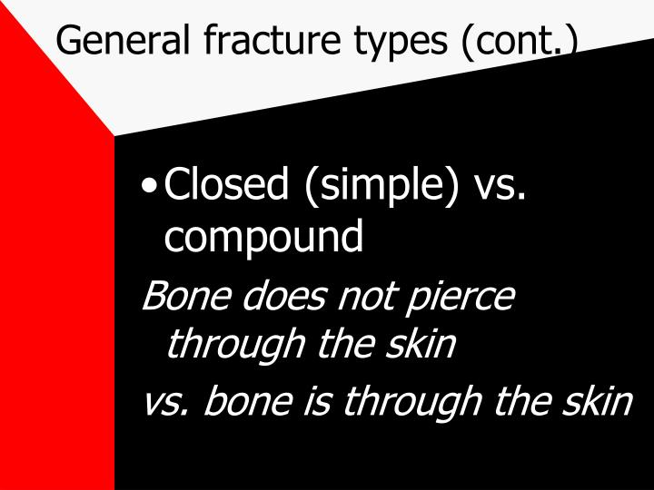 General fracture types (cont.)
