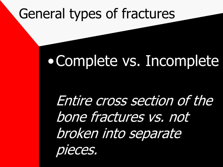 General types of fractures