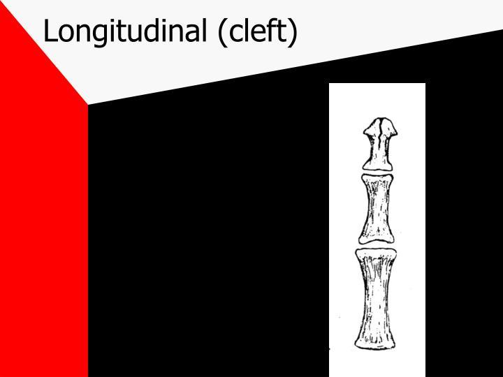 Longitudinal (cleft)