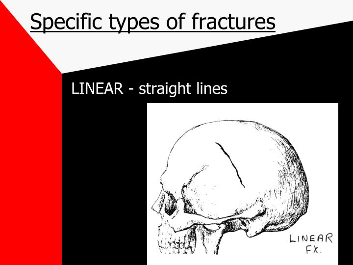 Specific types of fractures