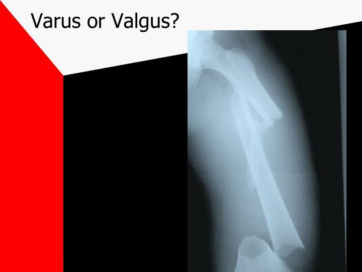 Varus or Valgus?