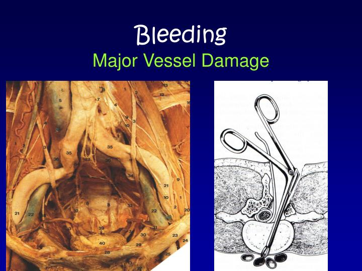Causes of upper gi bleeding in adults