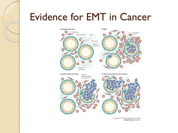 Evidence for EMT in Cancer