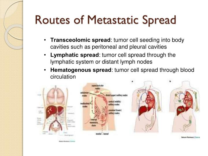 Routes of Metastatic Spread