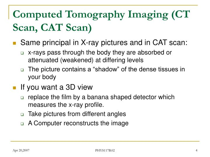 Computed Tomography Imaging (CT Scan, CAT Scan)