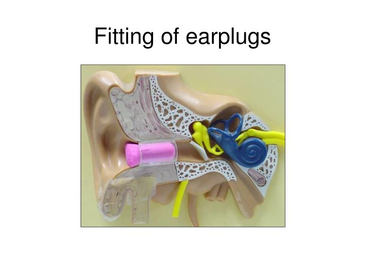 Fitting of earplugs