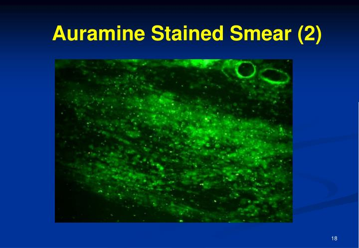 Auramine Stained Smear (2)