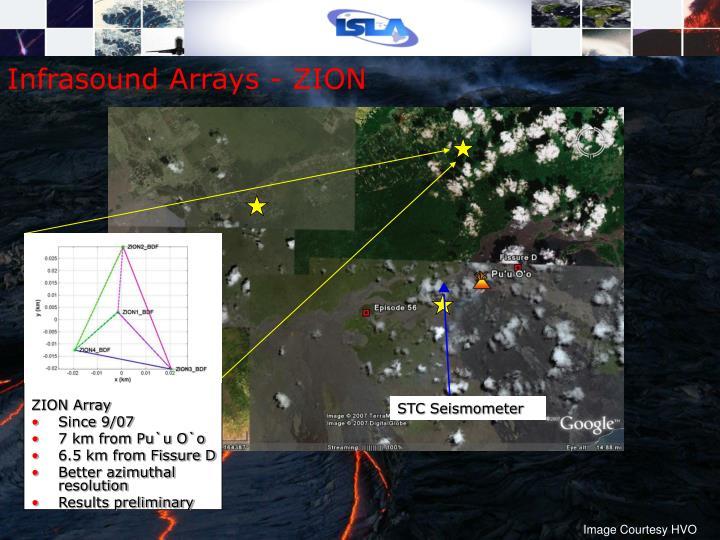 STC Seismometer