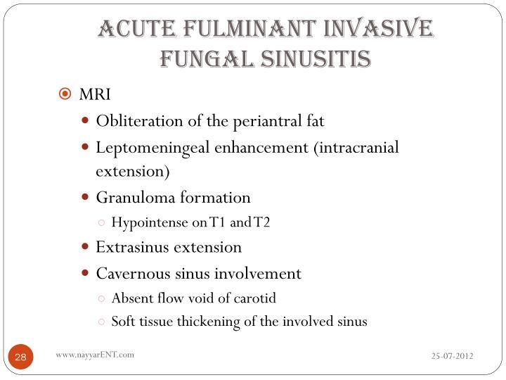 Acute Fulminant Invasive Fungal Sinusitis