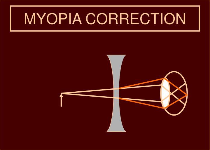 MYOPIA CORRECTION
