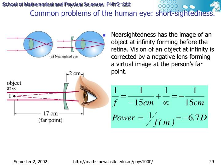Common problems of the human eye: short-sightedness.