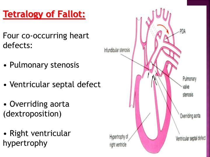 Tetralogy of