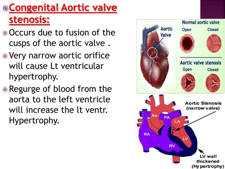 Congenital Aortic valve stenosis: