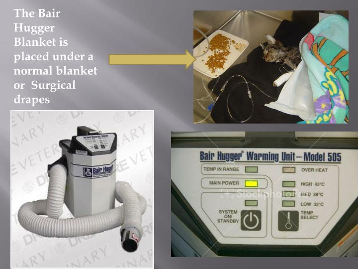 The Bair Hugger Blanket is placed under a normal blanket or  Surgical drapes