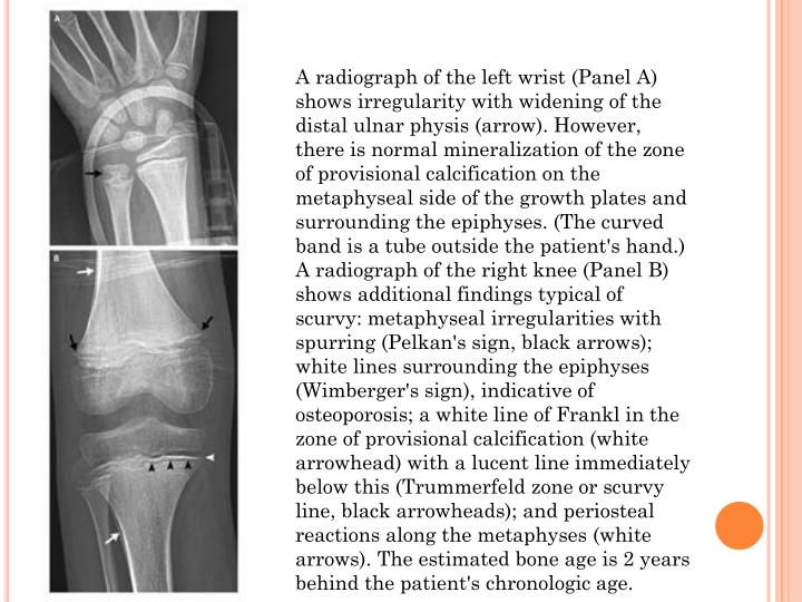 A radiograph of the left wrist (Panel A) shows irregularity with widening of the distal