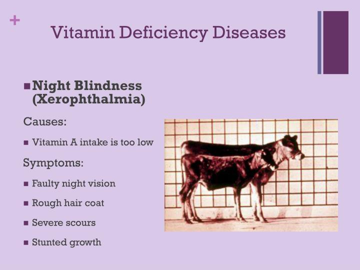Vitamin Deficiency Diseases