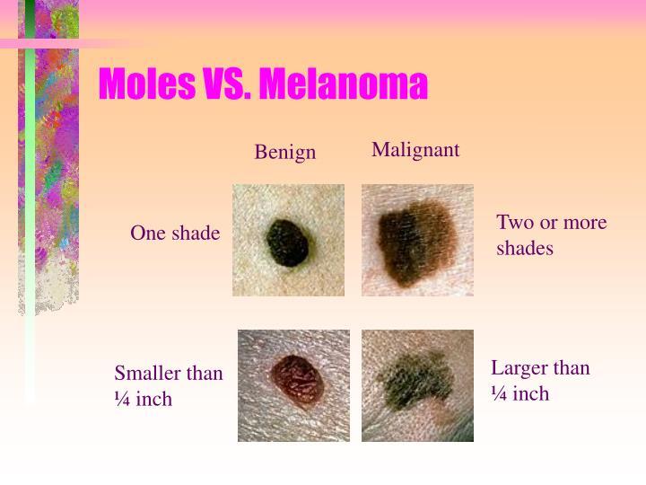 Moles VS. Melanoma