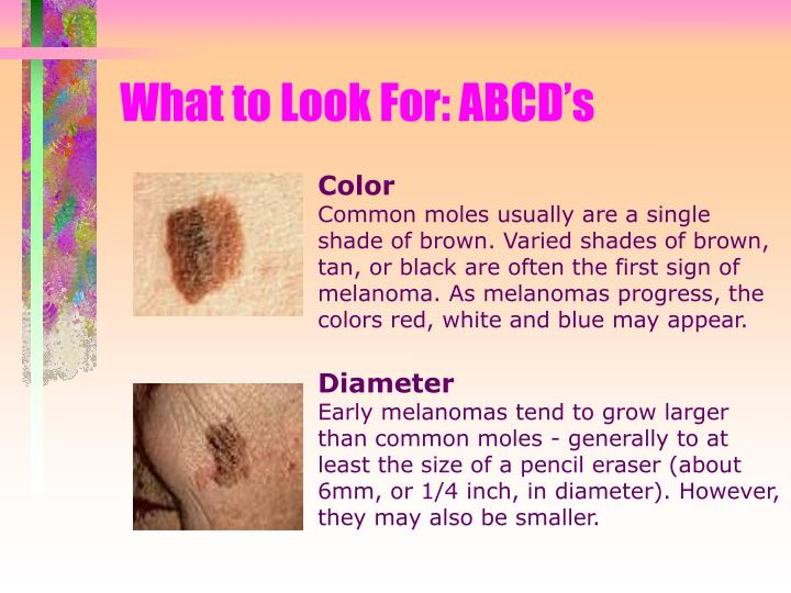 What to Look For: ABCD's
