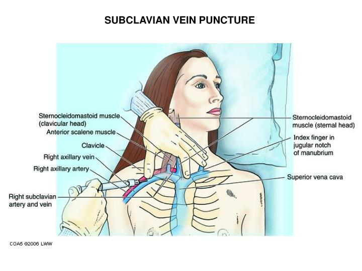 SUBCLAVIAN VEIN PUNCTURE