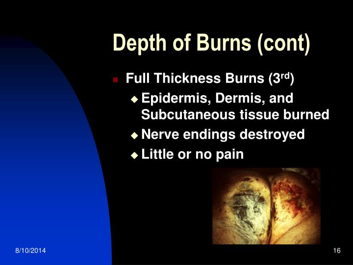 Depth of Burns (cont)
