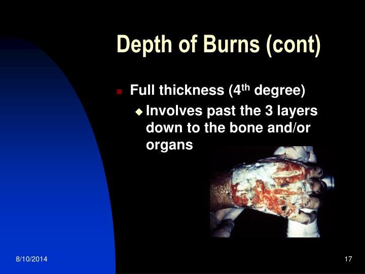 Depth of Burns (cont)