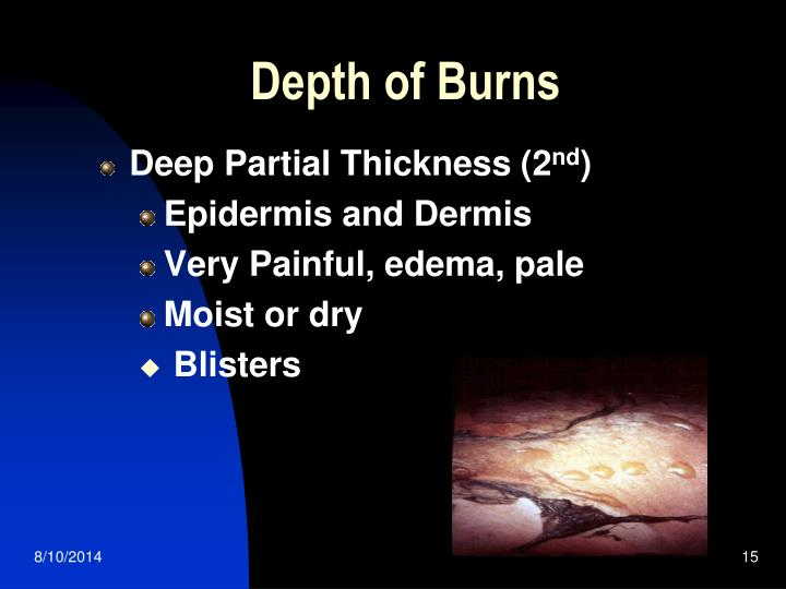 Depth of Burns