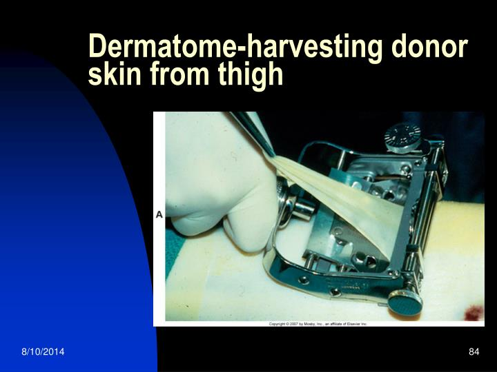 Dermatome-harvesting donor skin from thigh