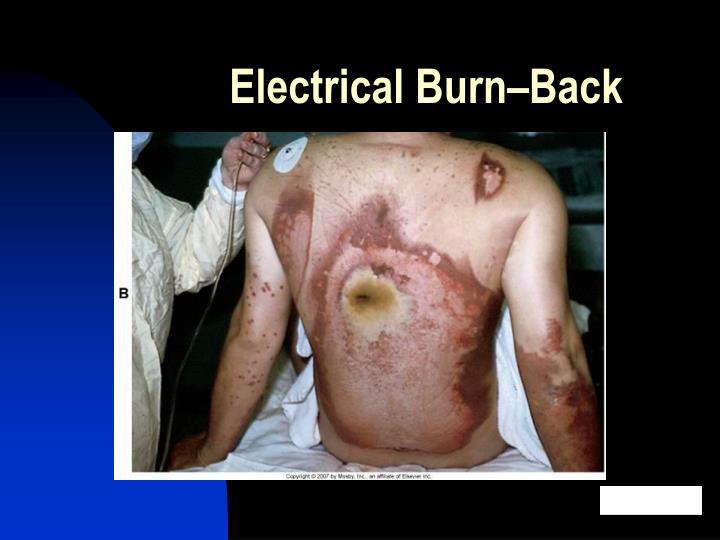 Electrical Burn–Back