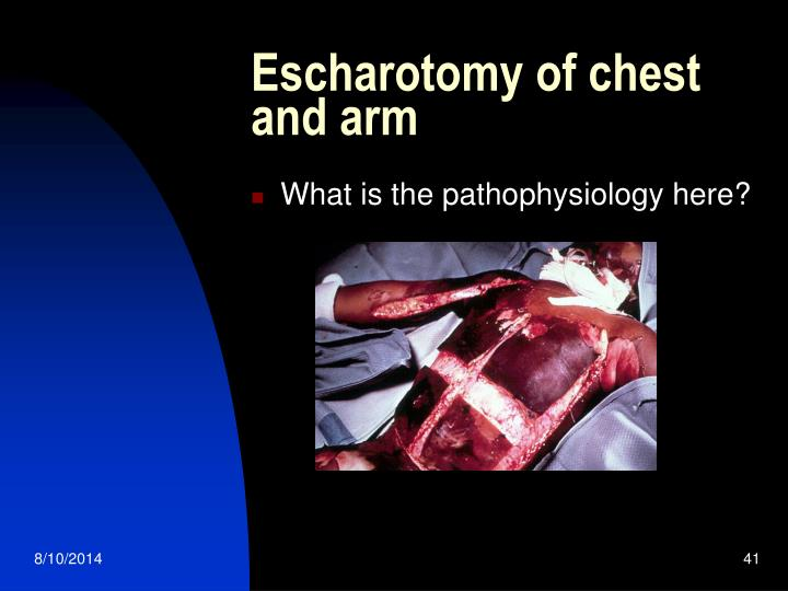 Escharotomy of chest and arm