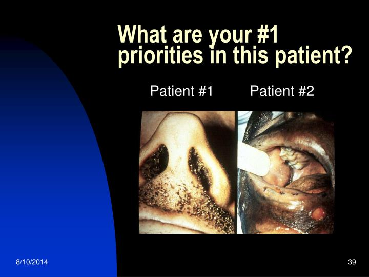 What are your #1 priorities in this patient?