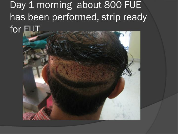 Day 1 morning  about 800 FUE has been performed, strip ready for FUT