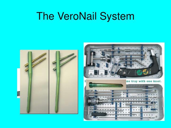 The VeroNail System