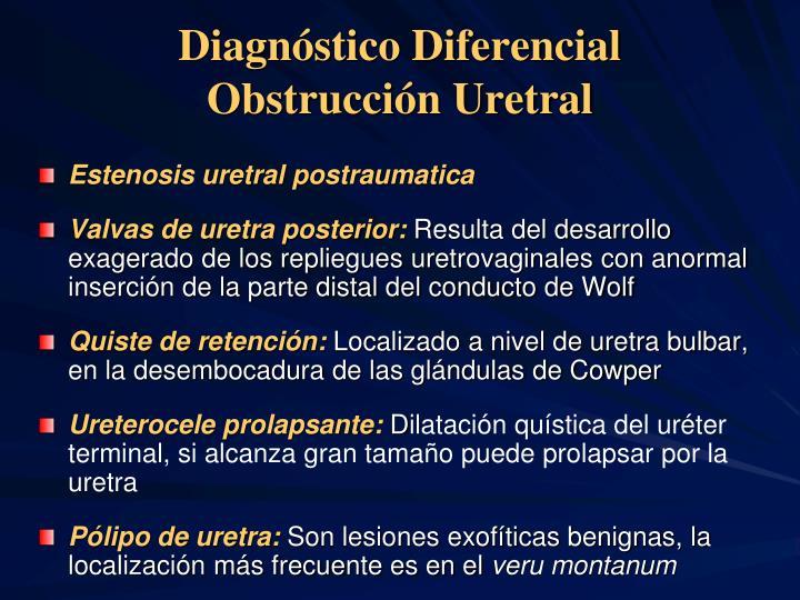 Diagnóstico Diferencial Obstrucción Uretral
