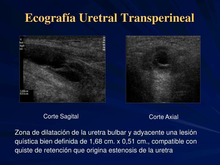 Ecografía Uretral Transperineal