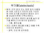 atelectasis