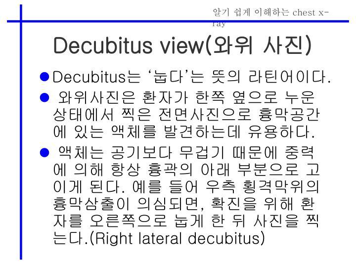 Decubitus view(