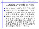 decubitus view