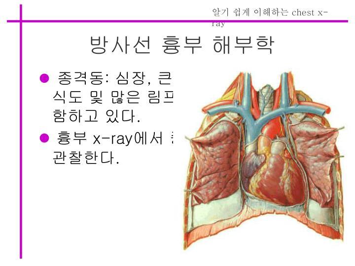 방사선 흉부 해부학