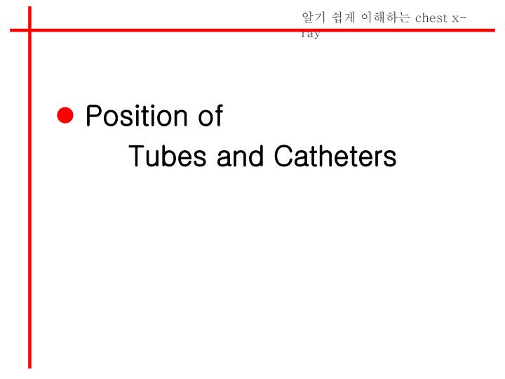 Position of