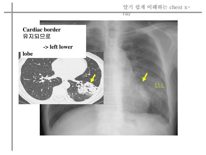 Cardiac border