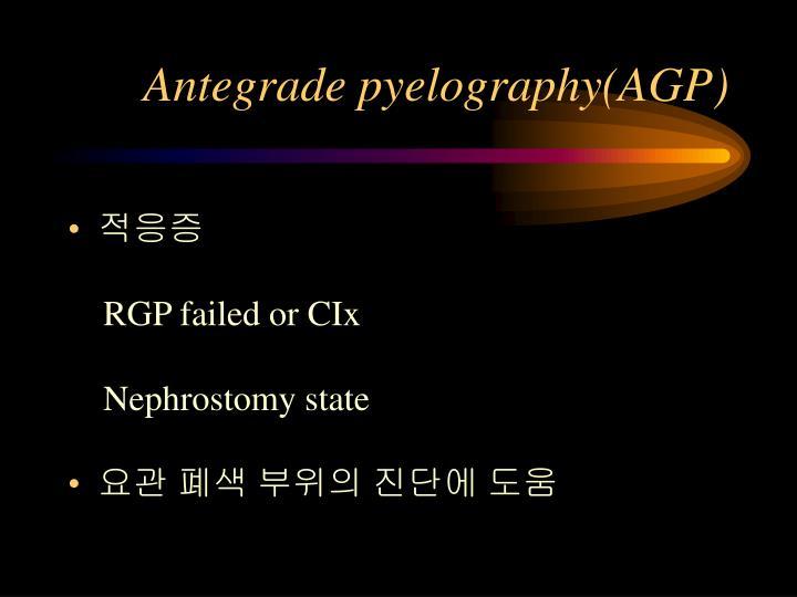 Antegrade pyelography(AGP)