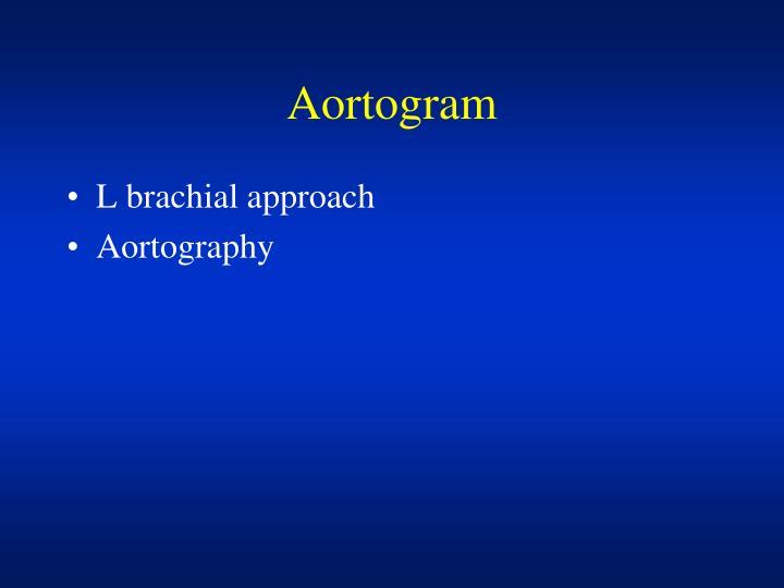 Aortogram