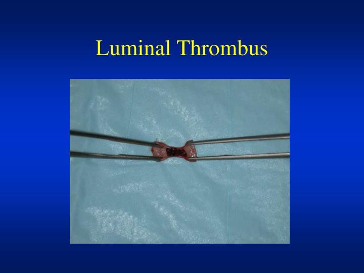 Luminal Thrombus