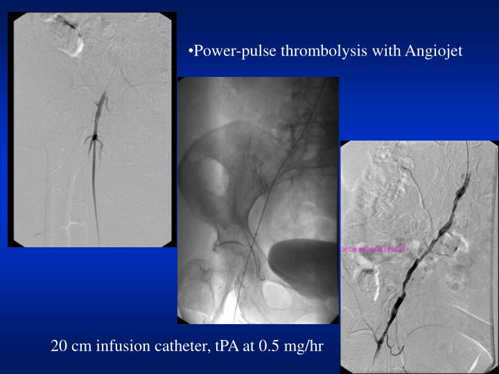 Power-pulse thrombolysis with Angiojet