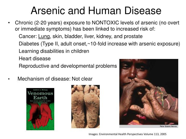 Arsenic and Human Disease